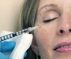 botox injections, worry lines, wrinkles,  crows feet, botulinum toxin